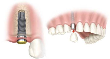 зубные импланты в Симферополе