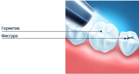 консультация у стоматолога в Симферополе