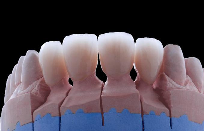 Этапы установки имплантанта «от и до»