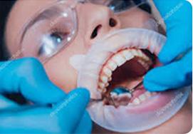 Скидка 30% на полный комплекс профессиональной гигиены полости рта