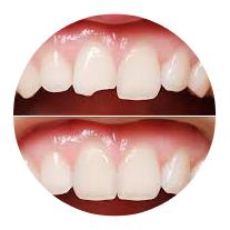 Устранение сколов зубов