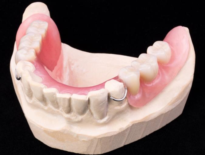 Съемный зубной протез из акрила