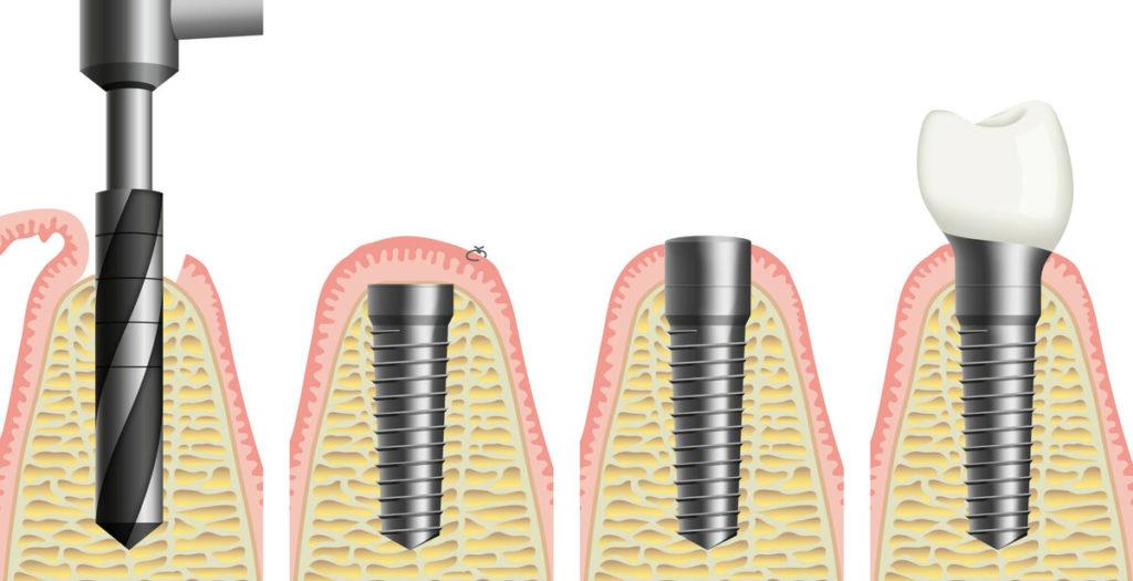 Как осуществляется имплантация зуба