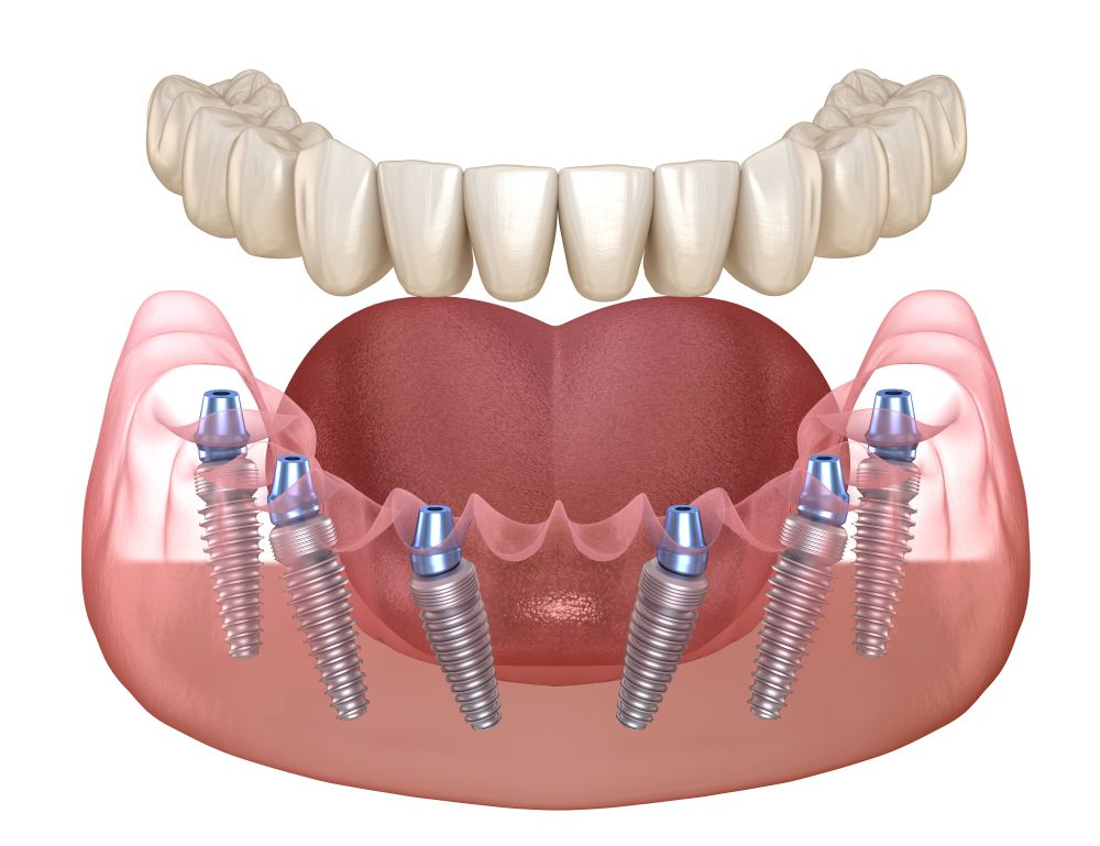 Методика имплантации (протезирования) All-On-6