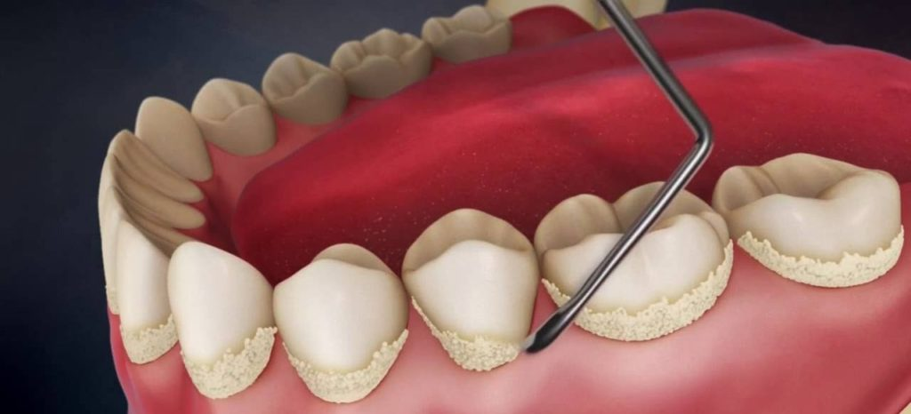 Удаление зубного камня, цена в Симферополе